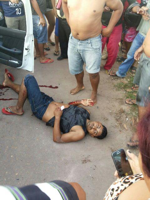 """Neudo Nunes, o """"Cotoco"""", levou três tiros mas sobreviveu"""