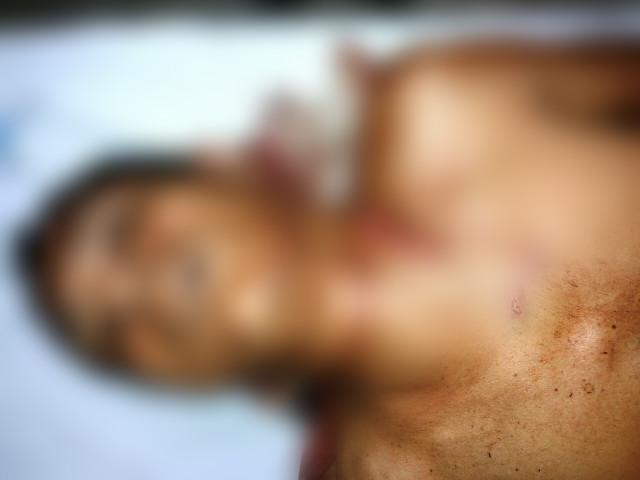 Gerson Barbosa passou por uma cirurgia
