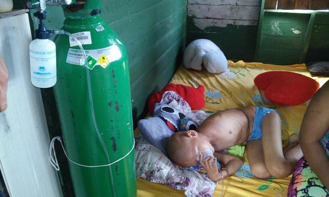 Criança respira com ajuda de aparelhos