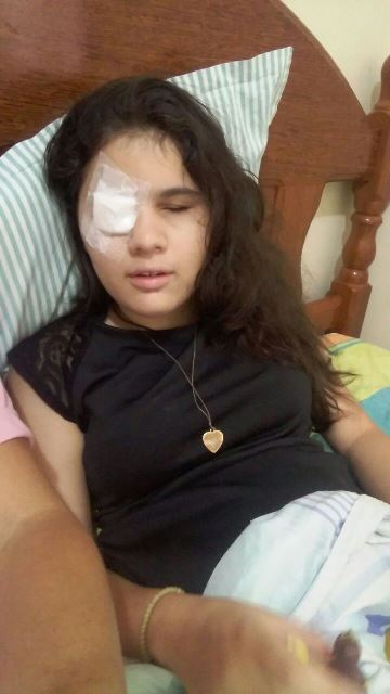 Alice fez cirurgia no olho direito e agora se recupera. Fotos: Arquivo Pessoal