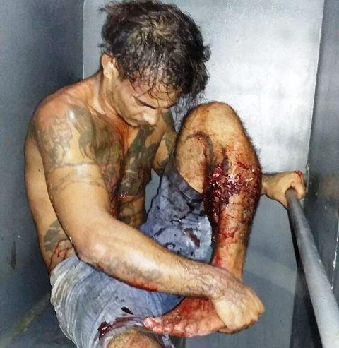 Um dos detentos ferido é transportado para o HE. Foto: GTP