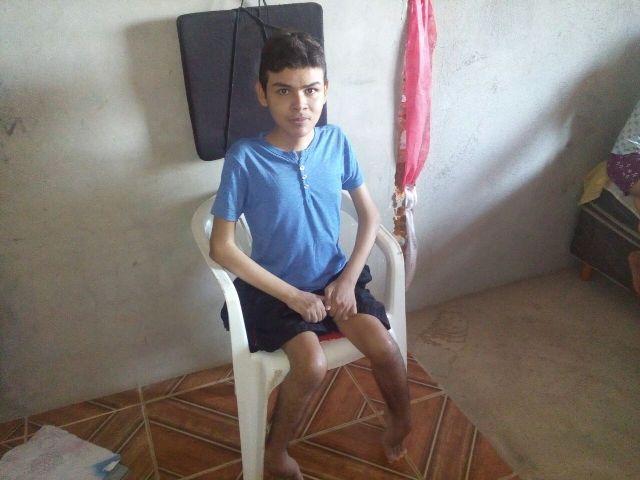 Carlos Wilian, filho mais velho. Doença está mais avançada. Fotos: André Silva