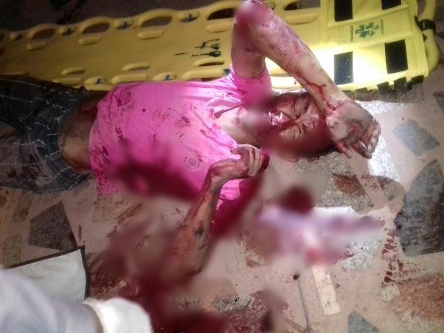Criminosos ficaram bastante feridos, e tiveram que ser transferidos para Macapá