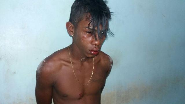 Rafael foi agredido por populares após ter sido capturado. Fotos: Olho de Boto