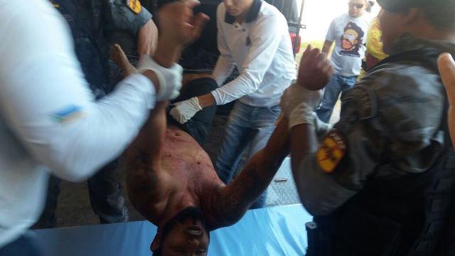 Bandido é retirado do carro da Rotam na frente do HE: estado crítico