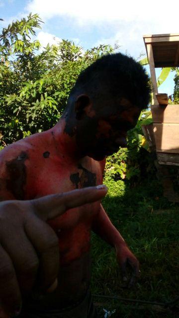 Rapaz foi encontrado pedindo socorro. Fotos: enviada por moradores