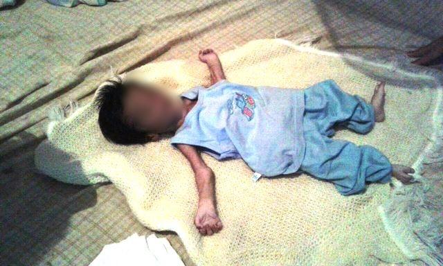 Criança aparentava extrema desnutrição. Foto tirada pela família