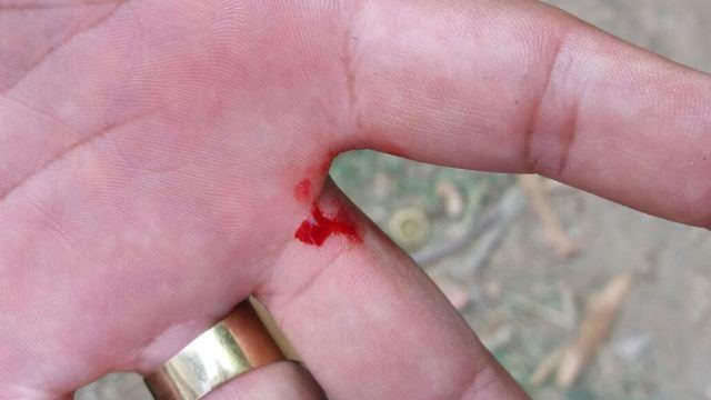Policial foi ferido na mão durante a captura de menor
