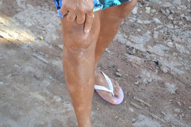Dona Raimunda Socorro expõe cicatriz de queda que pegou ao andar na lama