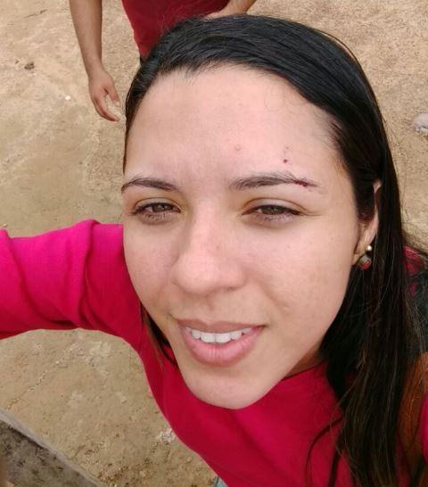 Auriane Costa fez selfie após acidente: corte na sobrancelha e susto