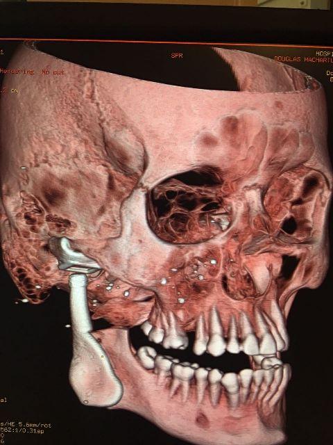 Mandíbula com a prótese