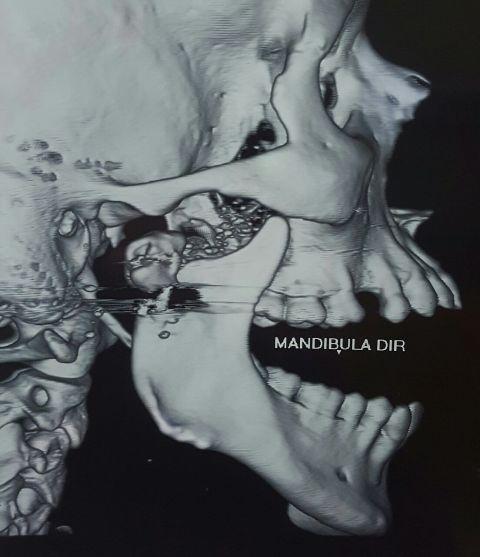 Mandíbula sem a prótese, Fotos: equipe médica
