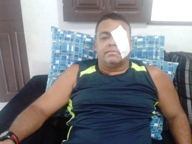 Oficial que pode ficar cego é o 3º caso grave de agressão a PMs