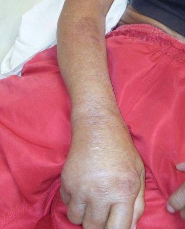 Abandono: Idoso de 75 anos enfrenta via crucis no HE