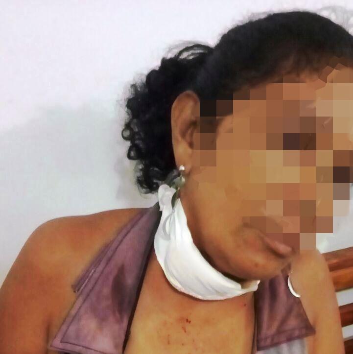 Mulher bate em cachorro e é esfaqueada pelo marido