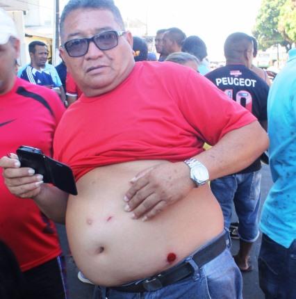 Vigilantes exibem ferimentos provocados por balas de borracha