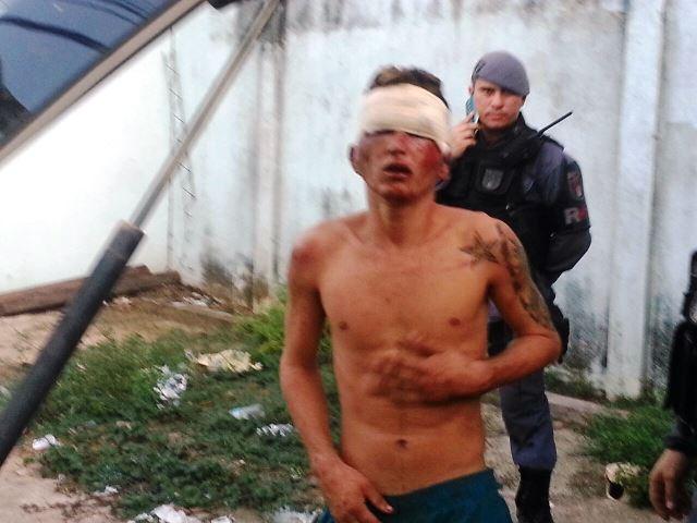 Na fuga, assaltante é atropelado e espancado por moradores