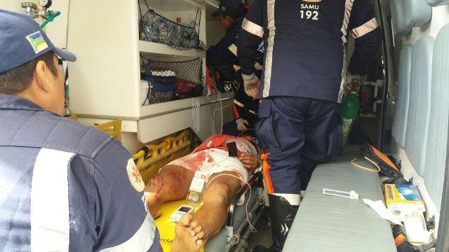 Vítima de tiro no rosto caminha para ambulância, mas morre no HE