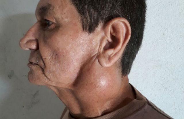 Paciente de câncer com nódulo no pescoço tenta cirurgia na rede pública