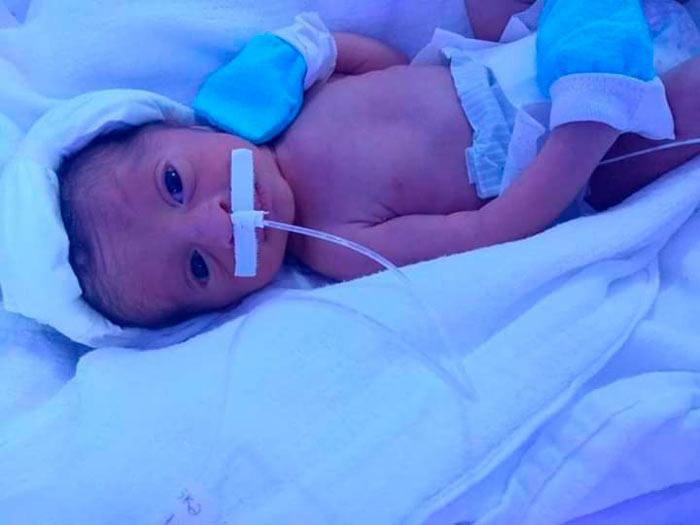 Morre o único bebê masculino de trigêmeos que nasceram após drama da mãe