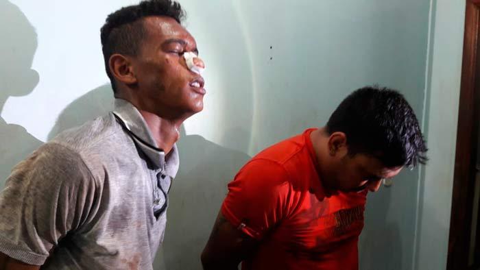 Acusado de assalto cai e quebra nariz durante fuga