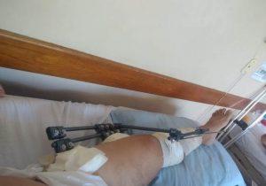 Há 20 dias, professor aguarda cirurgia para não perder movimento da perna