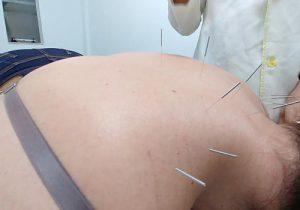 Depressão, síndrome do pânico e LER: acupuntura é cada vez mais procurada no Amapá