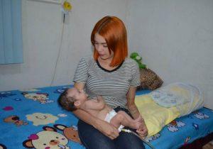 Bebê com doença abdominal rara aguarda por cirurgia fora do Amapá