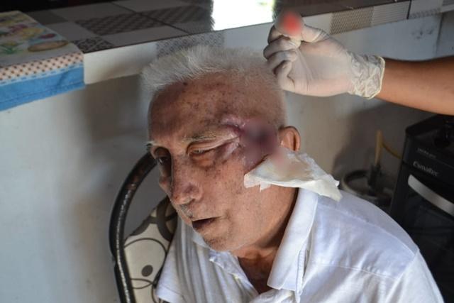 Idoso tem rosto consumido por câncer enquanto espera cirurgia