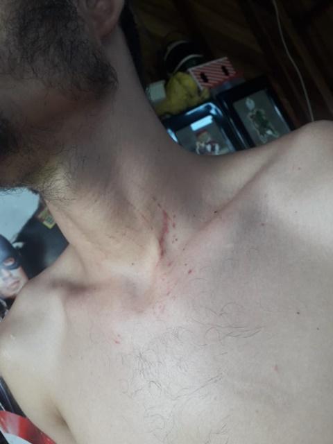 Jovem que recebeu ajuda para estudar diz ter sido agredido por policiais