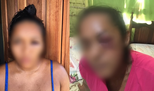 Lutador de MMA é acusado de agredir toda a família