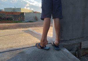Menino só consegue caminhar na ponta dos pés